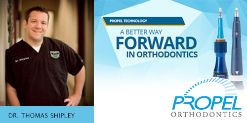 Webinar: Accelerated Orthodontics with Propel