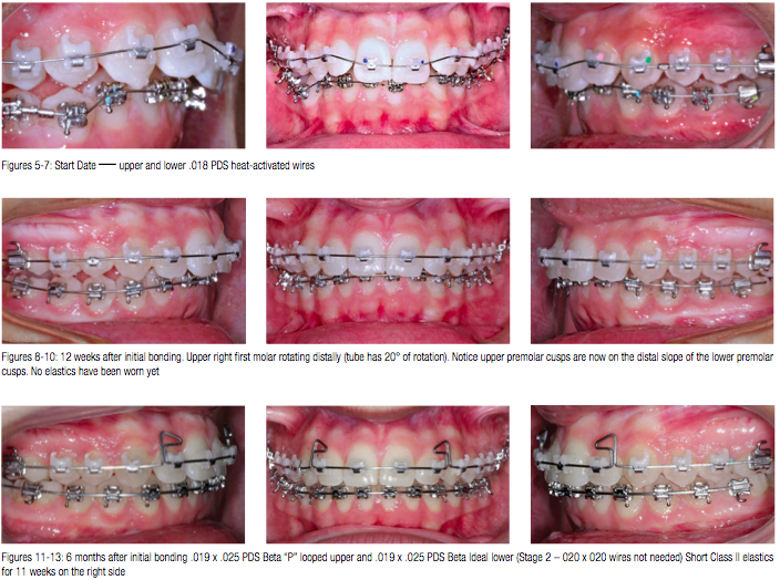 A 40 Year Odyssey In An Orthodontic Practice