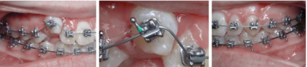 Figure 9: Six weeks later, the tooth was erupted and was bonded