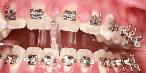 A new method of controlling gingival hypertrophy with orthodontic patients