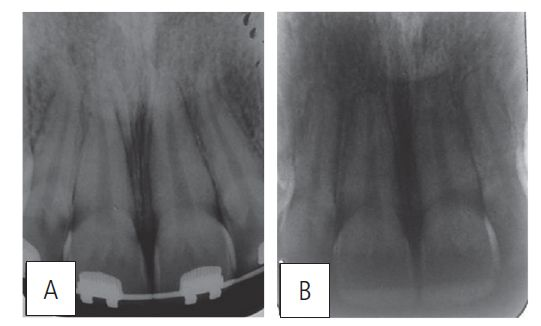 Figure 11: Maxillary incisors periapical (A) before intrusion; (B) after treatment