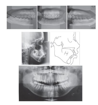 Figure 2: Pretreatment study casts, cephalogram, cephalometric tracing, and panoramic radiograph