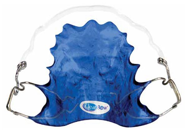 ClearBow™ retainers are custom formed for ideal retention and esthetics