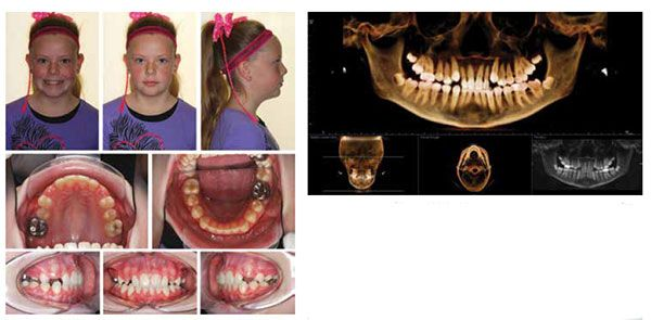 Figure 8: Interim deband photos demonstrating correction of posterior crossbite and functional facial asymmetry; Figure 9: Panoramic CBCT image at interim deband demonstrating reduction in dental crowding