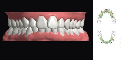 Scanning with CEREC Ortho for clear aligner treatment