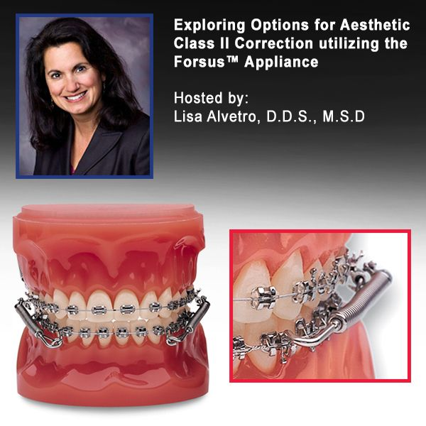Exploring Options for Aesthetic Class II Correction utilizing the Forsus™ Appliance