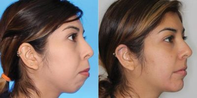 A review of accelerated orthodontics