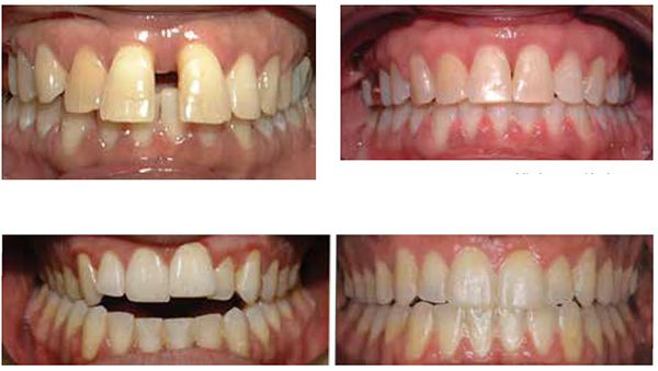 Figure 7: Large 4 mm diastema; Figure 8: Space closed and deep bite improved in 4 months with 1 MOP and PSL mechanics; Figure 9: AY Adult nonsurgical Invisalign before and after with AcceleDent 16 months overall treatment. Estimated 24 months = 35% reduction in treatment time