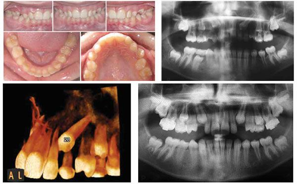 Figure 6A: This 11-year-old patient presented with non-palpable bilateral buccal canine bulges and no mobility of the primary canines. Furthermore, she presented with a half-cusp Class II molar relationship and excessive overjet; Figure 6B: Panoramic radiographic findings show maxillary permanent canines that are overlapping the lateral incisors, a mesial crown angulation (>15 degrees), and minimal physiological root resorption of the primary canines; Figure 6C: A CBCT of the canines confirmed the palatal position of the erupting canines (palatally displaced canines) and confirmed that there was no external root resorption of tooth No. 2.2. Note the lack of physiologic root resorption on tooth No. 6.3; Figure 6D: Preventive treatment consisted of the extractions of the maxillary primary canines in combination with headgear therapy resulting in improved eruption of the PDCs. Note the improved angulation of the erupting canines to the midline when compared to the pretreatment radiograph in Figure 6B