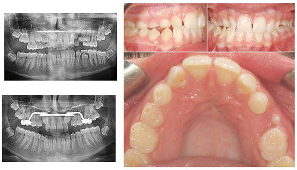 Figure 7A: This 12-year-old female patient presented for examination in the early mixed dentition. Note the significant overlap of both tooth No. 1.3 and No. 2.3 with the maxillary lateral incisors; Figure 7C: Preventive treatment consisted of the extractions of the maxillary primary canines in combination with a rapid palatal expander resulting in improved eruption of the PDCs; Figure 7B: This same patient also presents with a narrow maxillary arch, right posterior crossbite, and significant maxillary and mandibular midline discrepancy