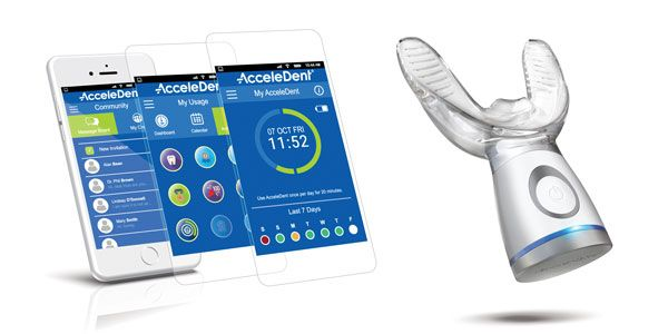 AcceleDent® Optima — what's new in accelerated orthodontics