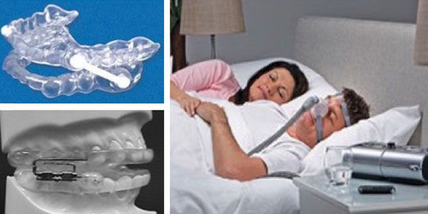 A comparative review of mandibular advancement devices and continuous positive airway pressure in patients with mild to moderate obstructive sleep apnea