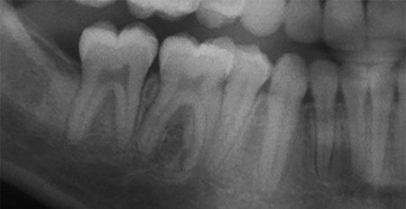 Tooth substitutions in orthodontic treatment