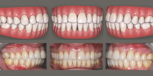 Accelerated orthodontics using photobiomodulation
