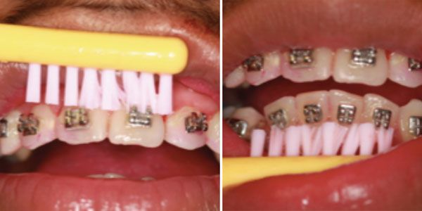 Correcting the least emphasized feature of orthodontic therapy