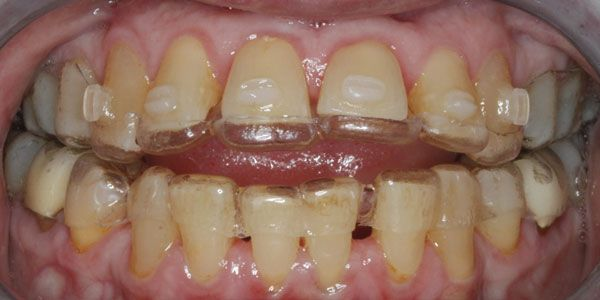 Staging clear aligners