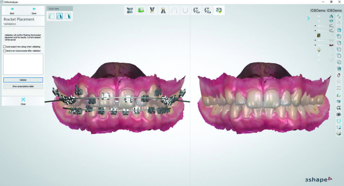 3Shape Ortho System™ 2017 software for orthodontics - Product
