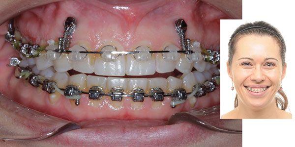 The gummy smile dilemma