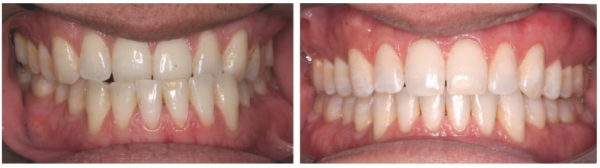 Figure 23: SK closer look of bite and smile post-ortho and surgery with clear aligners, vibration, and compliance