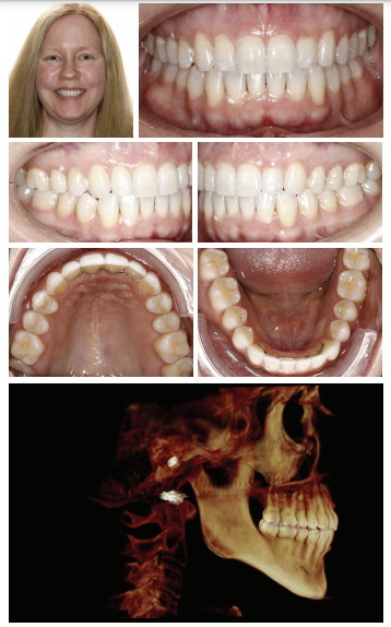 Figures 4A-4G: Final records. 39 weeks of treatment with 32 weeks of full-time active aligner wear